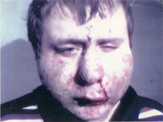 Фотография Ахмедова, сделанная омоновцами после избиения